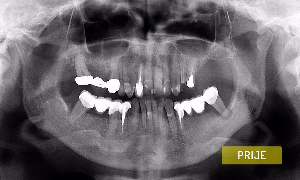 stomatoloska-protetika-1-2