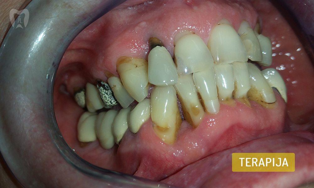 stomatoloska-protetika-1-3