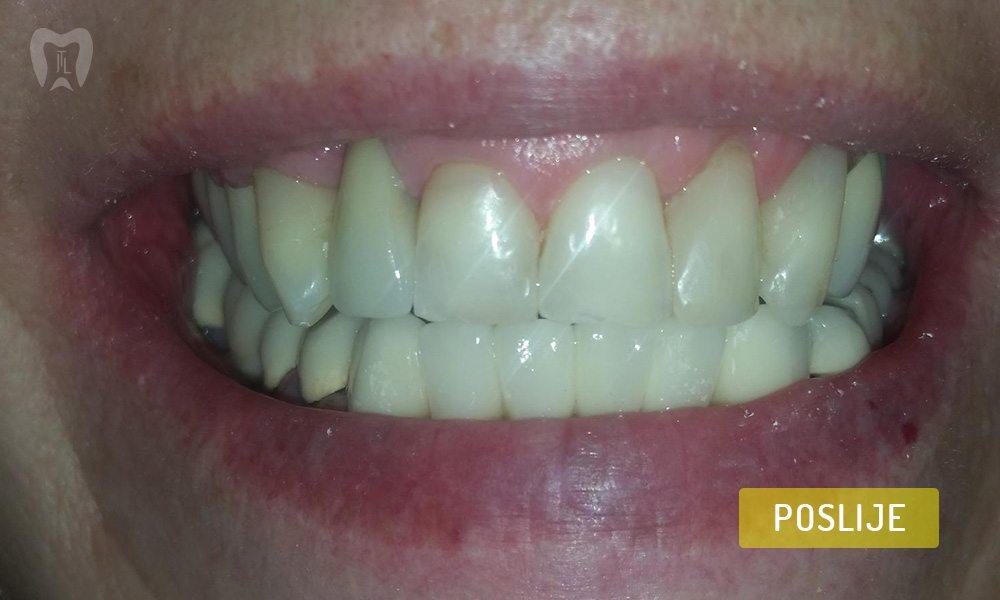 stomatoloska-protetika-1-4