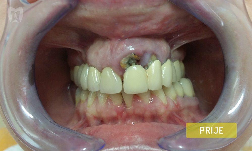 stomatoloska-protetika-3-1