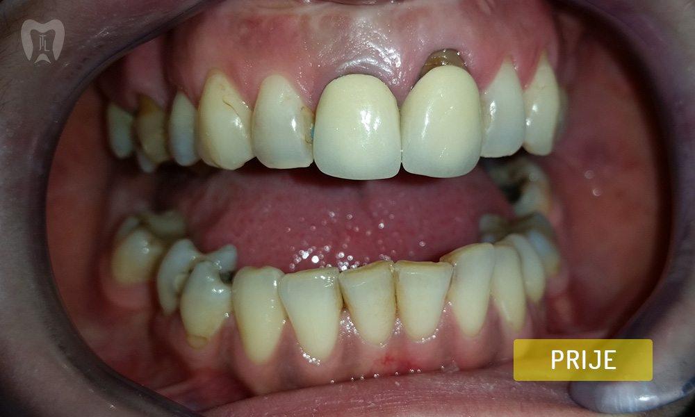 stomatoloska-protetika-4-1