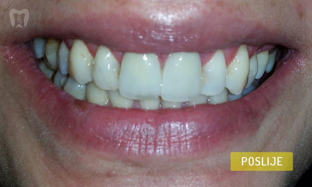 stomatoloska-protetika-4-2