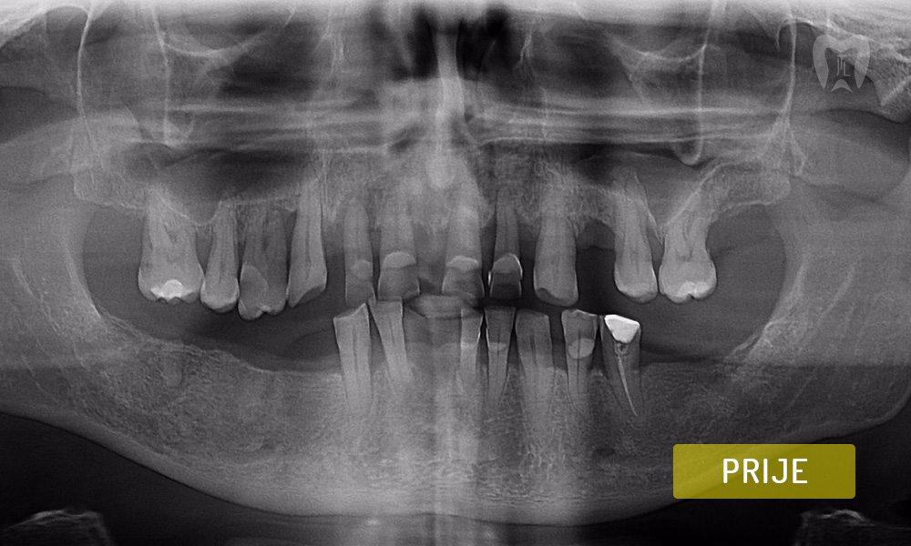 stomatoloska-protetika-5-1