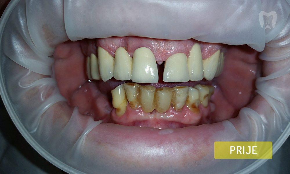 stomatoloska-protetika-5-2