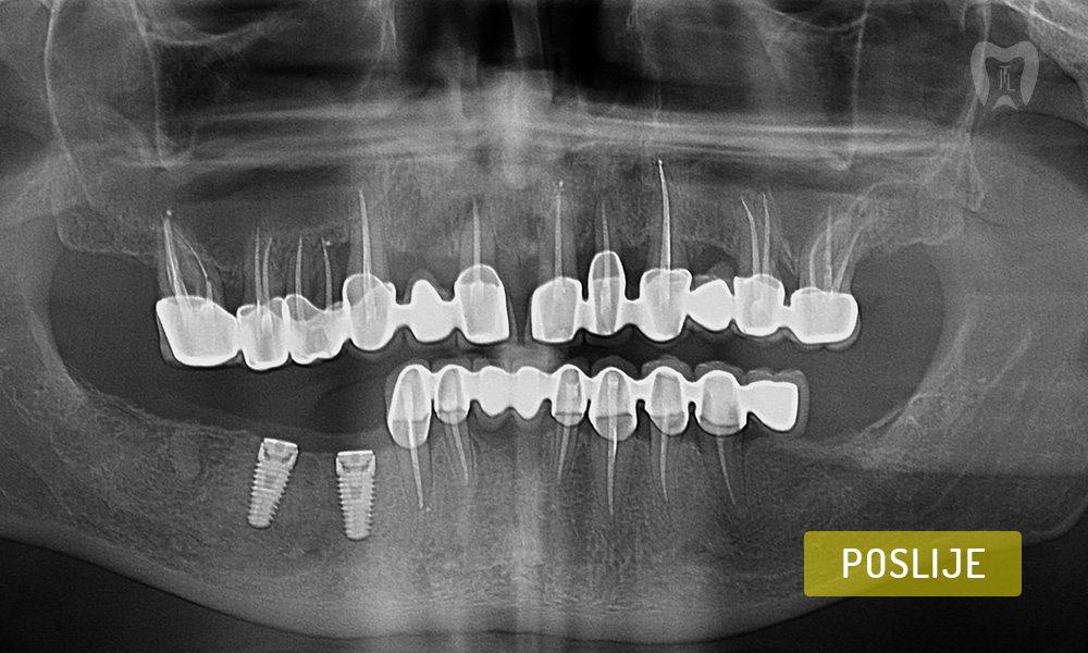 stomatoloska-protetika-5-3