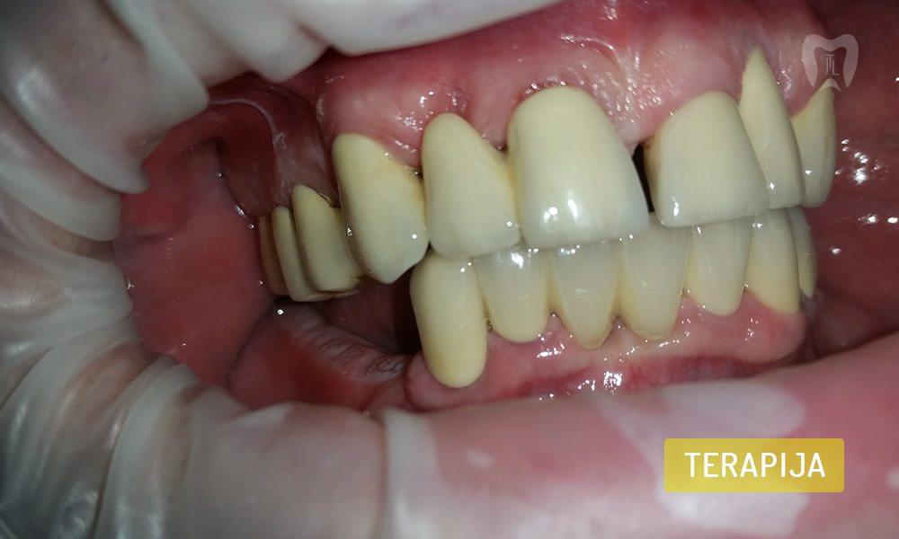 stomatoloska-protetika-5-4