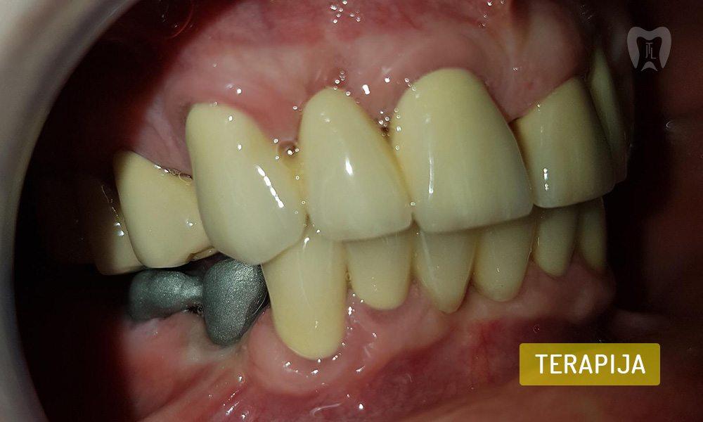 stomatoloska-protetika-5-6