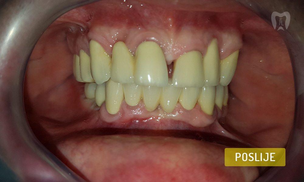 stomatoloska-protetika-5-7