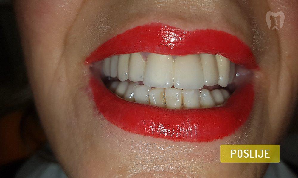 stomatoloska-protetika-3-2