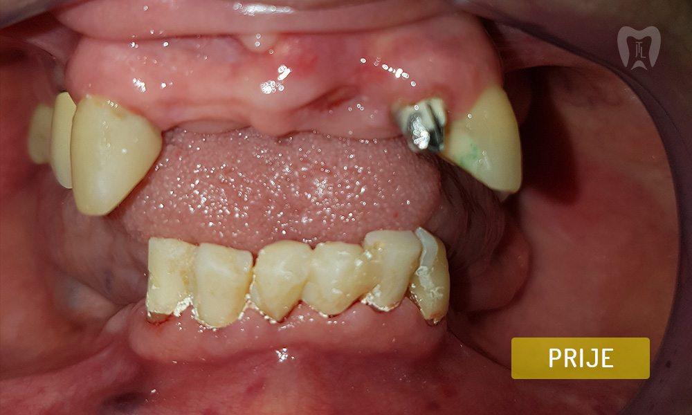 stomatoloska-protetika-6-1