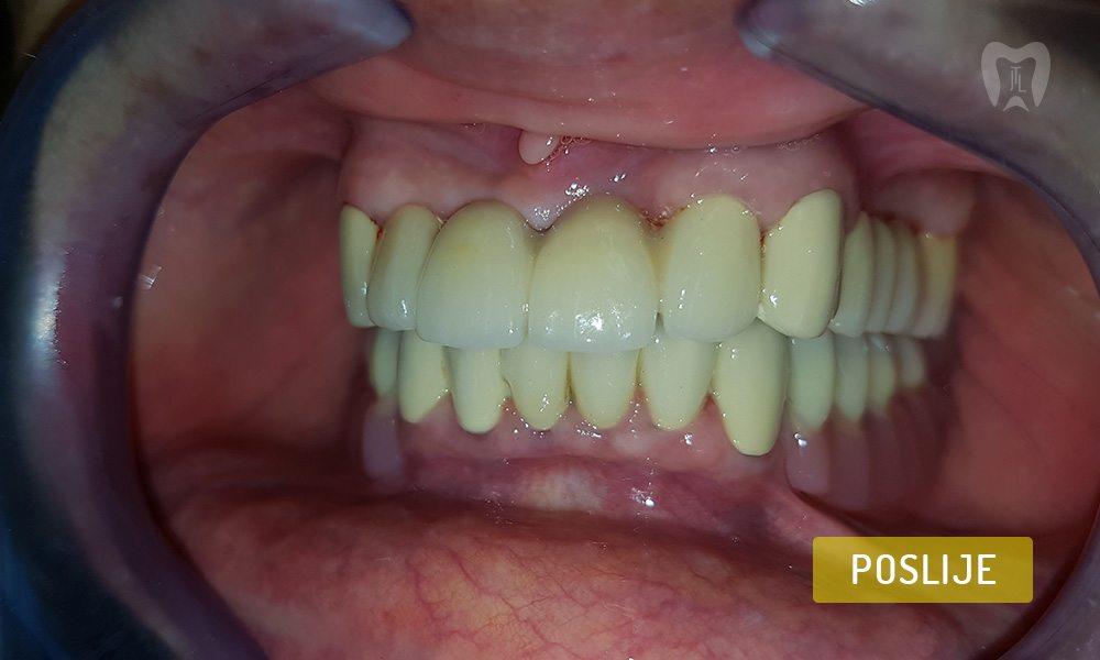 stomatoloska-protetika-6-2