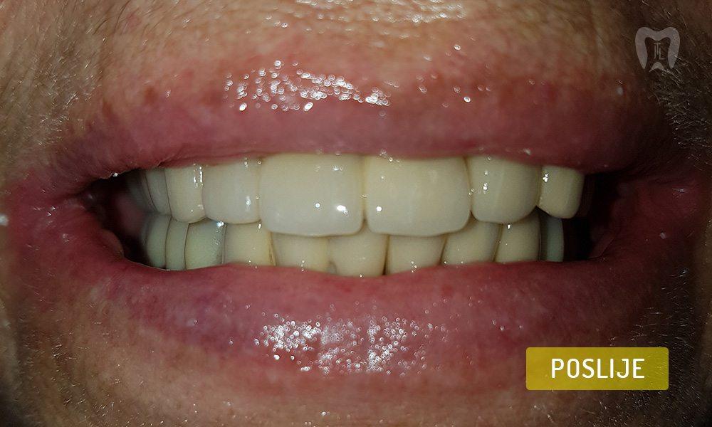 stomatoloska-protetika-6-3