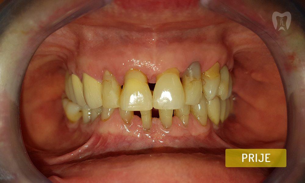 stomatoloska-protetika-7-1