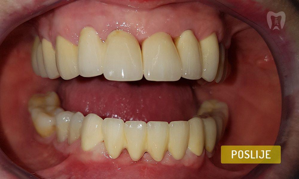 stomatoloska-protetika-7-2