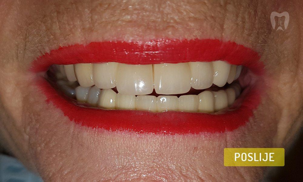 stomatoloska-protetika-7-3